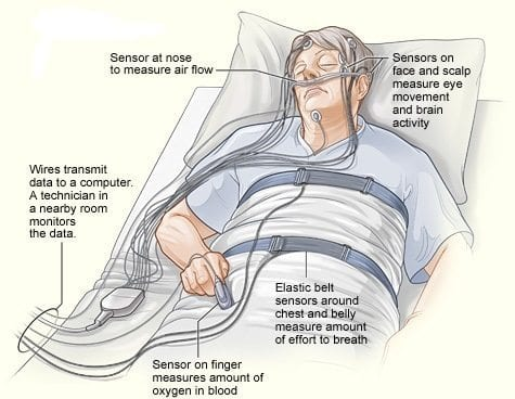MY SLEEP STUDY EXPERIENCE