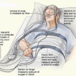 SLEEP STUDY FOLLOW-UP